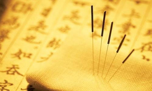 AkupunkturTeknikPengobatanTusukJarumBangsa